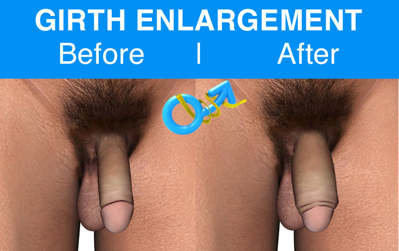 before-after-Girth-enlargement