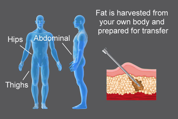 penis-fat-removed-diagrams