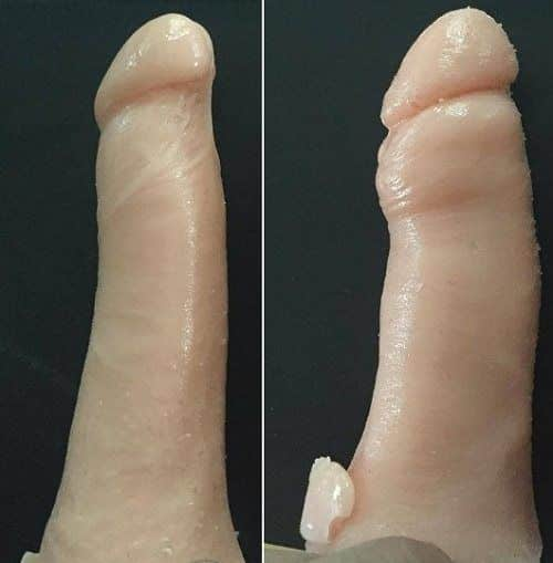 Before & After penis injections